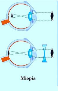 regressione della miopia