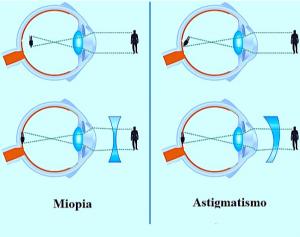miopia e astigmatismo differenze