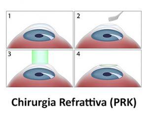 chirurgia refrattiva prk
